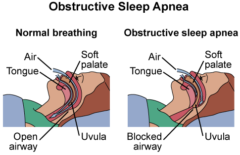 Sleepapnea Diagram